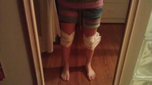Icing my knees after the 2013 Pikes Peak Marathon